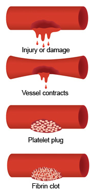 Wfh Elearning Platform Inherited Bleeding Disorders